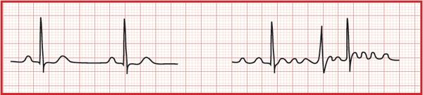 normales EKG und EKG bei Vorhofflimmern